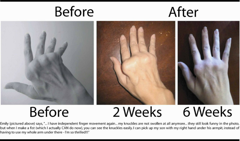 natural treatment for arthritis in hands