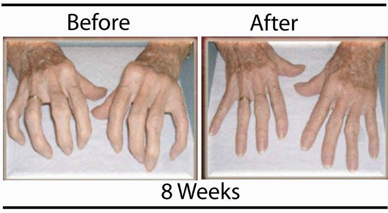 jus-hands2